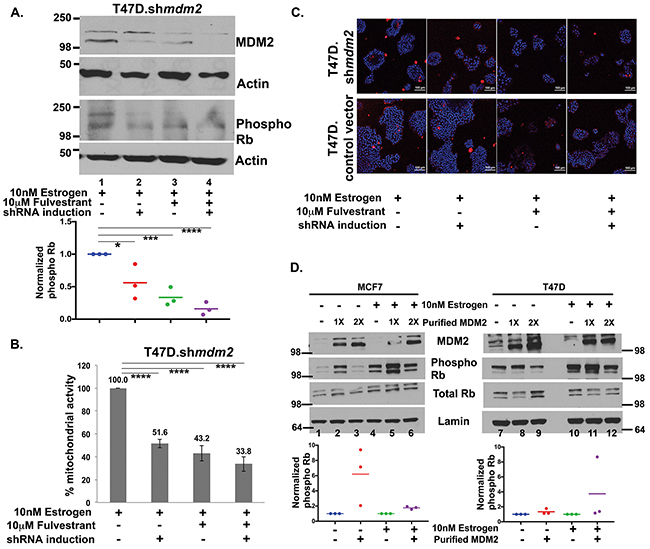 Fulvestrant treatment inhibits MDM2 expression and blocks the Rb-E2F1 pathway.