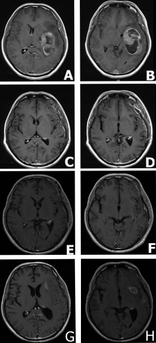 MRI findings in a male patient presented with glioblastoma multiforme.