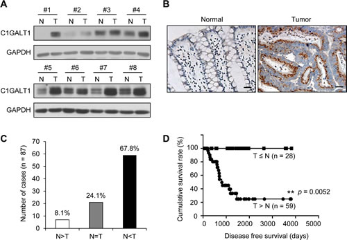 C1GALT1 is frequently overexpressed in colorectal tumors and its overexpression predicts poor survival of colorectal cancer patients.