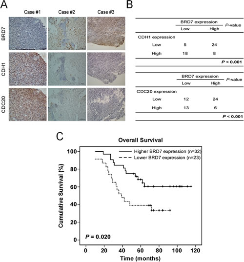 Fig 6: A lower expression of BRD7 indicates a poor prognosis, and there is an inverse correlation between the protein levels of BRD7 and CDH1 or CDC20 in human osteosarcoma.
