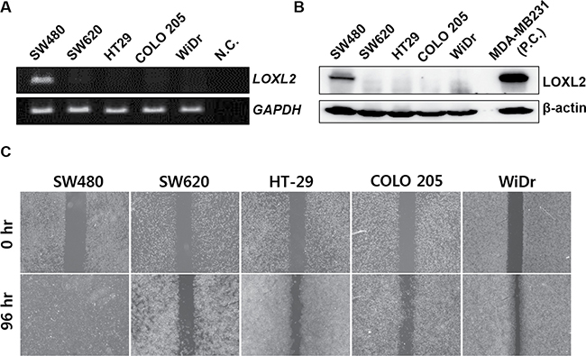 Correlation between LOXL2 expression levels and migratory potential of different CRC cells in vitro.