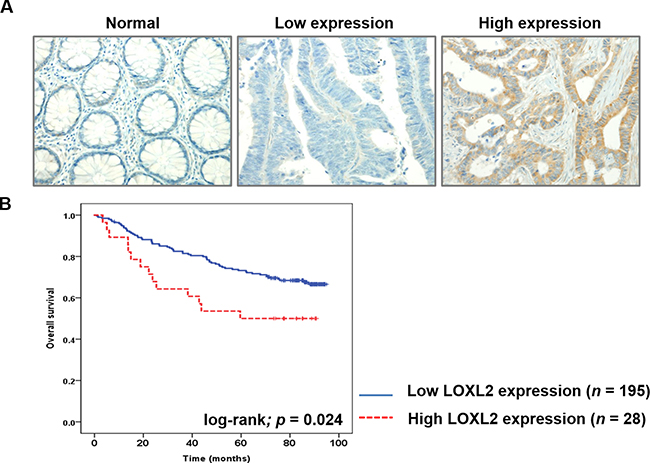 LOXL2 IHC analysis in CRC tissues and the correlation between this parameter and the survival of CRC patients.