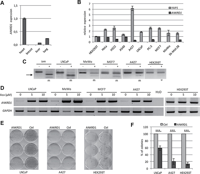 Epigenetic inactivation of ANKRD1 in human cancer.