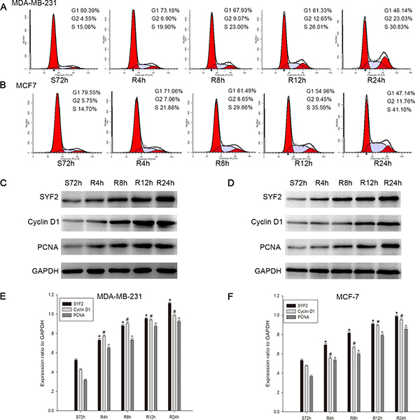 Correlation between SYF2 expression and BC cell cycle progress.