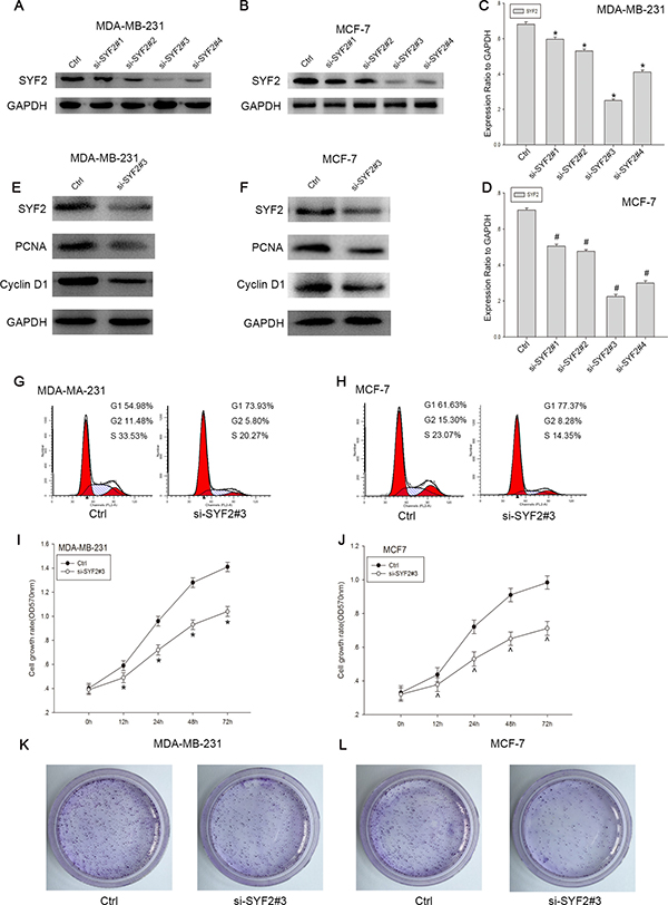 Knockdown of SYF2 inhibited proliferation of the breast cancer cell lines.