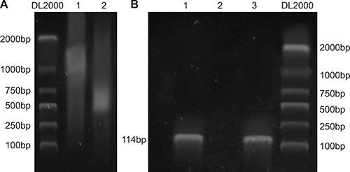 NRSF binds to MOR/DOR promoter genes.