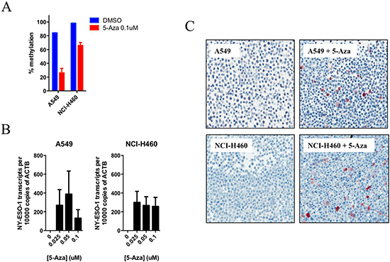 Treatment of lung cancer cells with demethylating agent, 5-Aza-dC, results in the demethylation of the NY-ESO-1 promoter and consequential mRNA and protein re-expression.