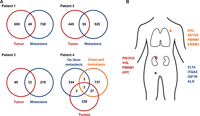 Clonal mutations in primary and metastatic sites.
