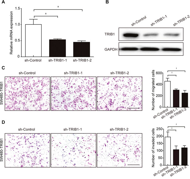 Silencing of TRIB1 reduces cell migration and invasion.