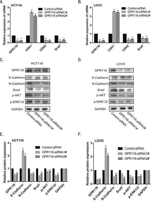 Downregulation of GPR116 reduces EMT through AKT/ERK pathway in CRC line.