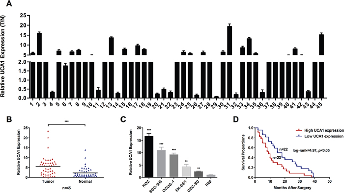 Relative expression of UCA1 in GBC and its clinical significance.