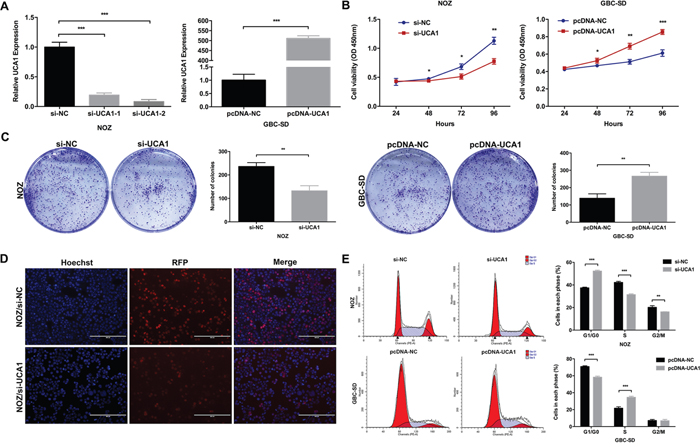 Effect of UCA1 on GBC cell growth in vitro.