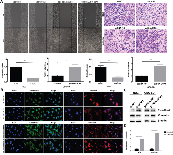 Effect of UCA1 on GBC cell metastasis and EMT in vitro.