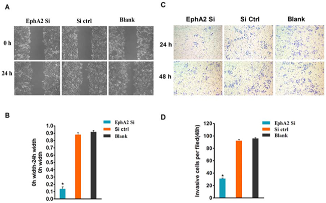 EphA2 promotes the migration and invasion of SGC-7901/L-OHP cells, and silencing of EphA2 may change their biological characteristics.