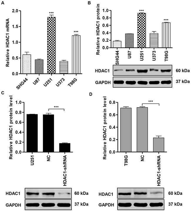 HDAC1 expression in glioma cell lines.