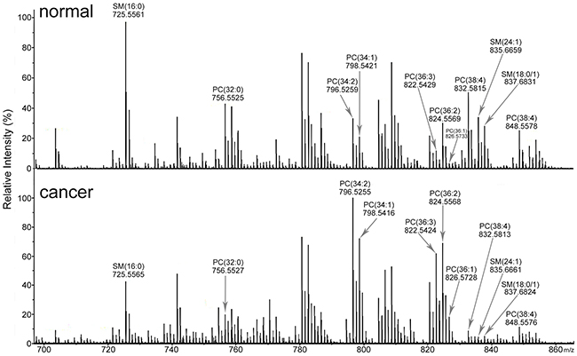 Mass spectra of lipids in MF tissue sections.