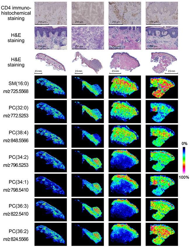 Mass spectrometry imaging of MF tissues.