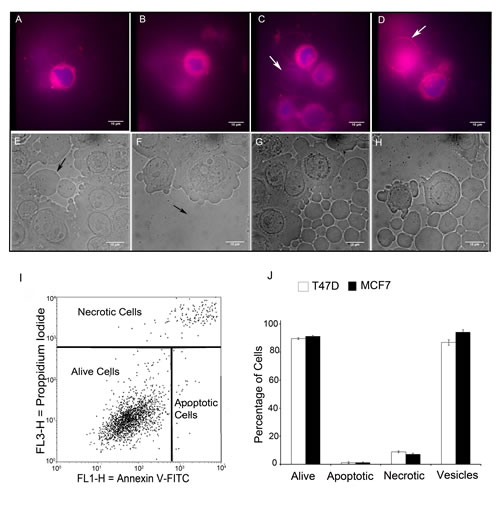 Live cell FM® 4-64FX fluorescent imaging and differential contrast microscopy imaging identify non-apoptotic giant vesicles.