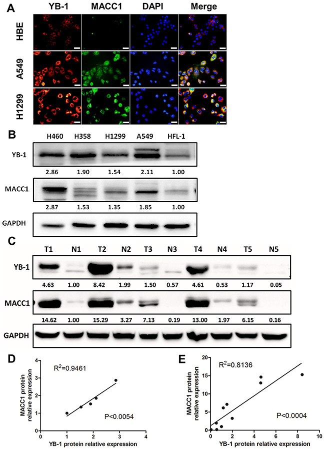 YB-1 was positively correlated with MACC1 and both proteins were over-expressed in lung adenocarcinoma cell lines.