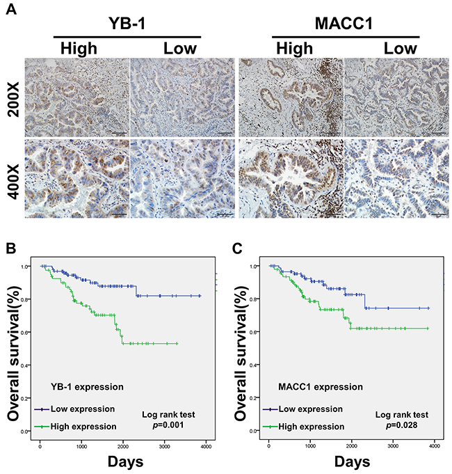 The prognostic significance of YB-1 and MACC1 for lung adenocarcinoma patients assessed via Kaplan-Meier analysis.