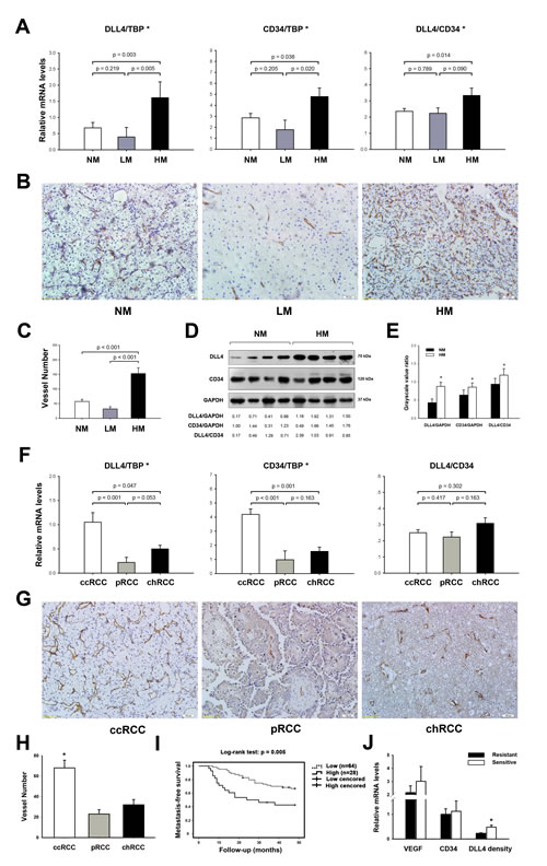Clinical association of DLL4 with the hematogenous metastasis of RCC.