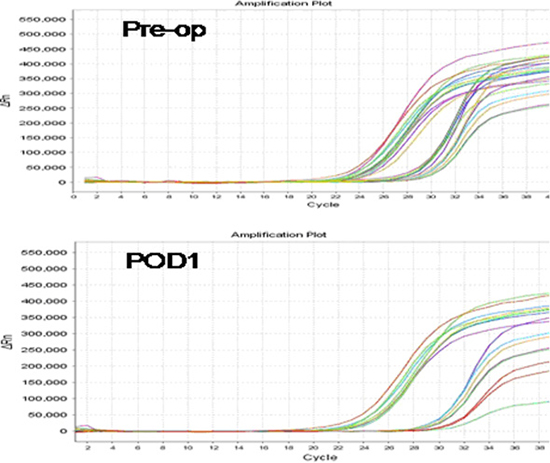 Polymerase chain reaction signaling maps of preoperative thyroid stimulating hormone receptor (TSHR) mRNA expression levels (Pre-op; top) and postoperative day 1 TSHR mRNA expression levels (POD1; bottom) in patients with papillary thyroid carcinoma.
