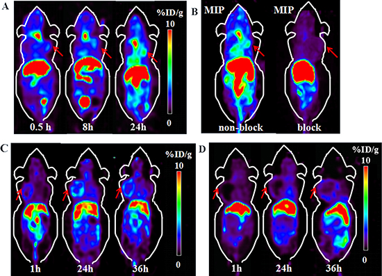 Micro-PET images of 64Cu-PSMA-617 in BGC-823 and PC-3 xenograft nude mice.