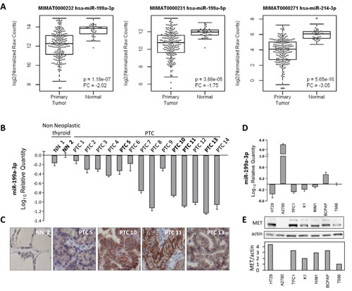 MiR-199a-3p and MET expression levels in PTC tissue samples and in PTC derived cell lines.