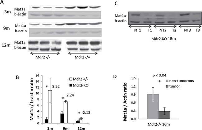 Decreased levels of the Mat1a protein in the non-tumor and tumor liver tissues of Mdr2-KO mouse revealed by immunoblotting.