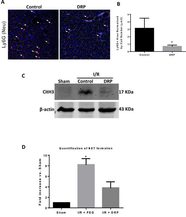 DRPs decrease neutrophil infiltration and neutrophil extracellular trap formation after I/R.