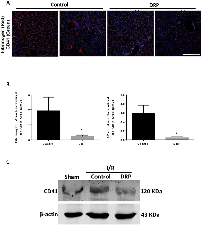 DRPs decrease platelet aggregation and micro thrombi formation in liver after I/R.