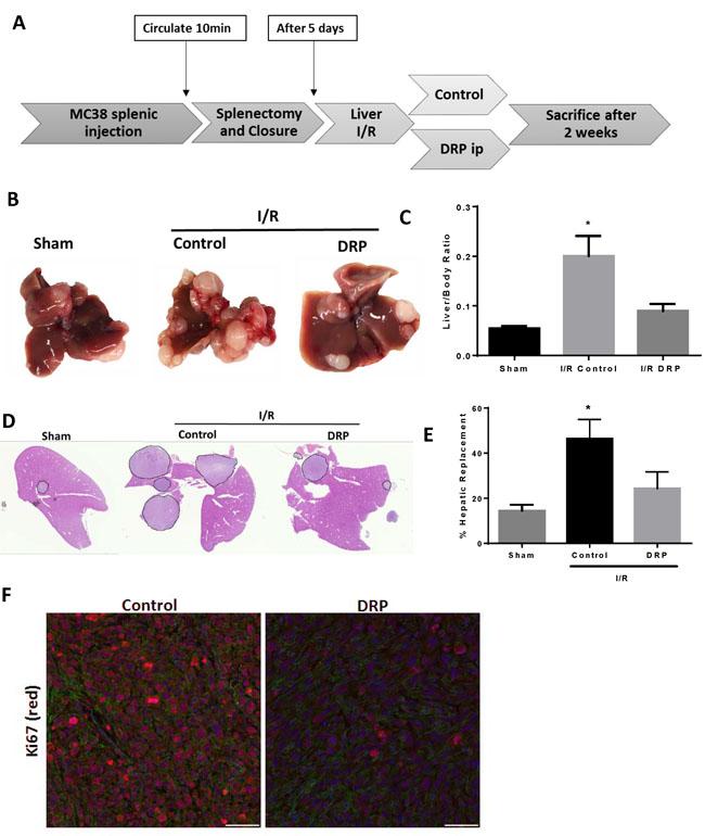 DRPs halt the I/R-induced accelerated growth of established liver micrometastases.