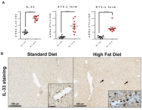 High-fat diet induces hepatic IL-33 expression.