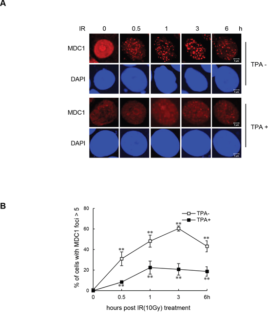 Impaired IR-induced MDC1 foci formation in differentiated MCF-7 cells.
