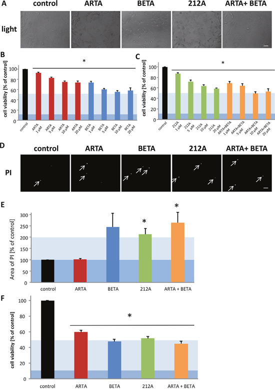 Cytotoxic effects of Artesunic acid, Betulinic acid and the hybrid 212A on human glioma cells.