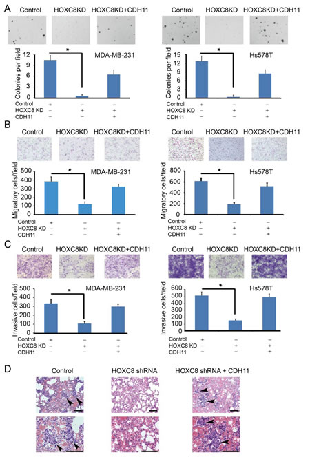 Figure5: HOXC8-CDH11 pathway is critical for anchorage-independent cell growth, cell migration/invasion and spontaneous metastasis of breast cancer cells.