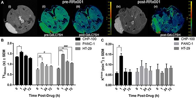 Gd-LC7-SH MRI of 3 tumor models.