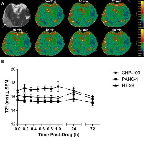 BOLD MRI of 3 tumor models.
