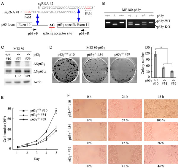 Knockout of ΔNp63γ inhibits cell proliferation and migration in ME180 cells, which primarily express ΔNp63.