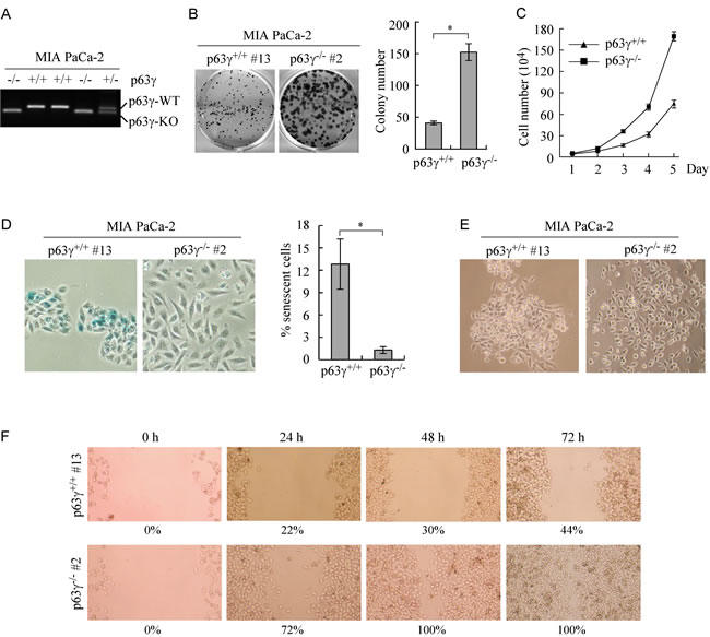 Knockout of TAp63γ promotes cell proliferation and migration in MIA PaCa-2 cells, which primarily express TAp63.