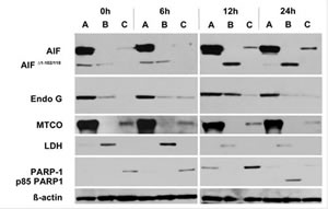 Treatment of JJN3 cells with ART 125μM induces cytoplasmic and nuclear translocation of AIF and EndoG.