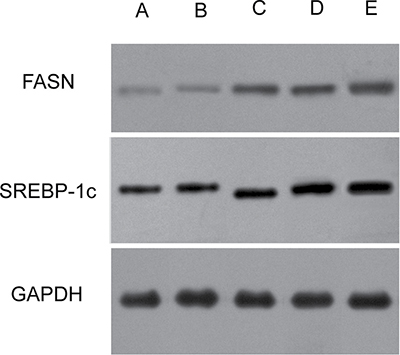 Effects of the TM6SF2 E167K and PNPLA3 I148M variants on SREBP-1c and FASN protein expression levels.