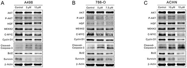 CPT repressed P-AKT/C-MYC signaling while enhanced Caspase-3/Bcl-2 signaling.