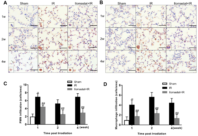 Ilomastat attenuates the pulmonary leukocyte influx induced by irradiation.