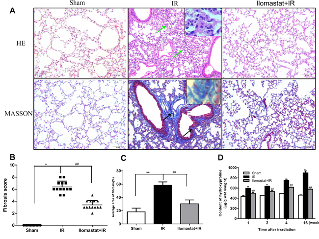 Protective effect of Ilomastat on the pulmonary fibrosis induced by irradiation at the 16th w.