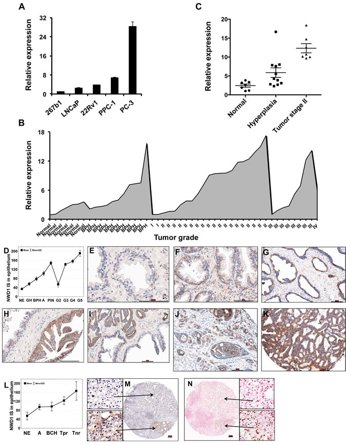 Expression patterns of NWD1 in prostate cancer.