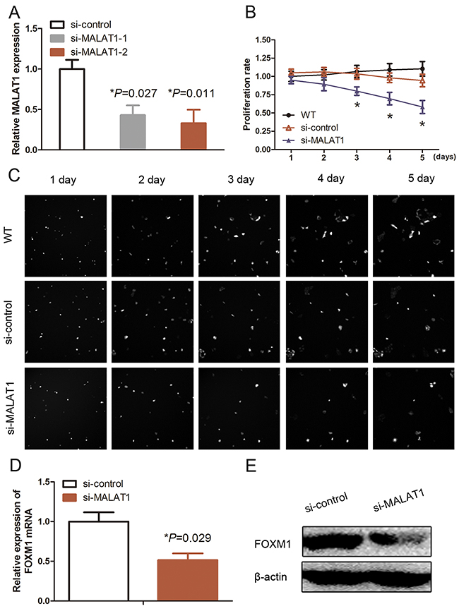 Effects of MALAT1 siRNA on inhibition of MALAT1 expression and cell proliferation.