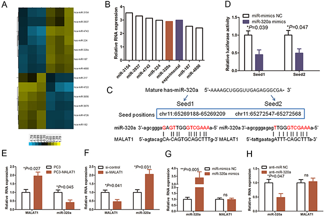 The reciprocal interaction of MALAT1 and miR-320a in HUVECs.
