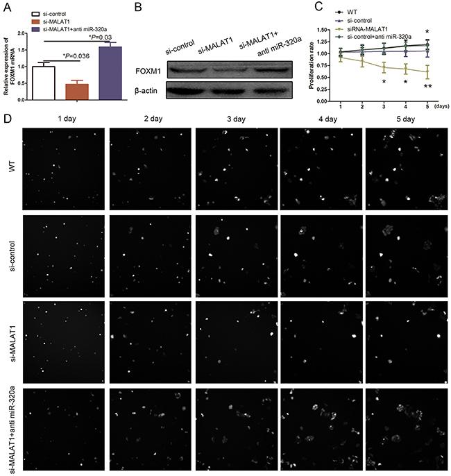 Effect of miR-320a on HUVEC proliferation.