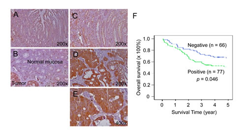Increased expression of TESC in colorectal cancer tissues compared with normal tissues.